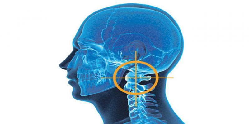 Dépression, arthrose, migraine... c'est la faute à l'atlas!
