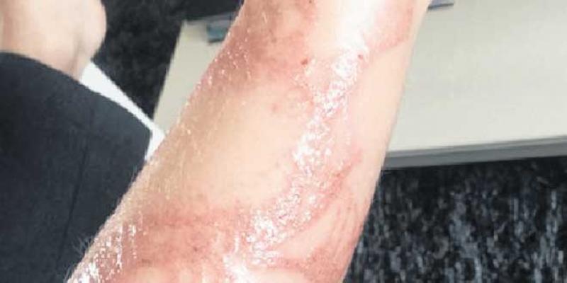 Attention au tatouage au henné noir!