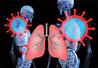 virus-poumon-050.jpg