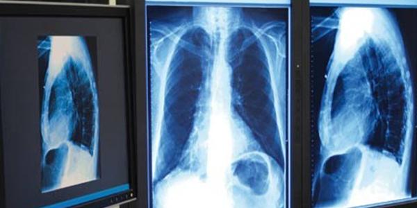 Tuberculose : Les détails du nouveau plan de lutte